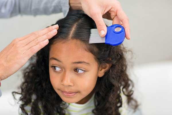 شپش موی سر در دانش آموزان